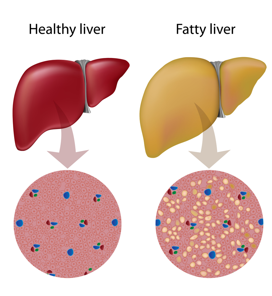 Gene Linked to Liver Cancer Also Involved Obesity