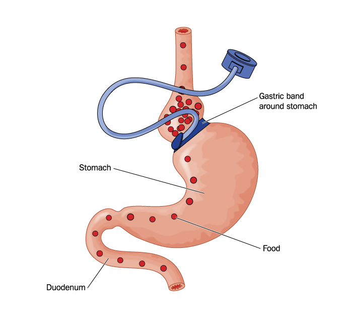 Laparoscopic Adjustable Gastric Banding Surgery Shown As Effective Treatment for Morbid Obesity