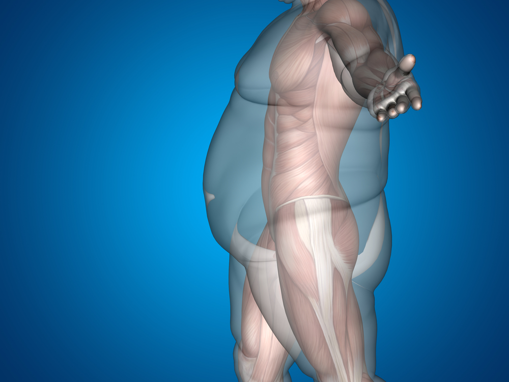 Long Term Results Of Bariatric Surgery