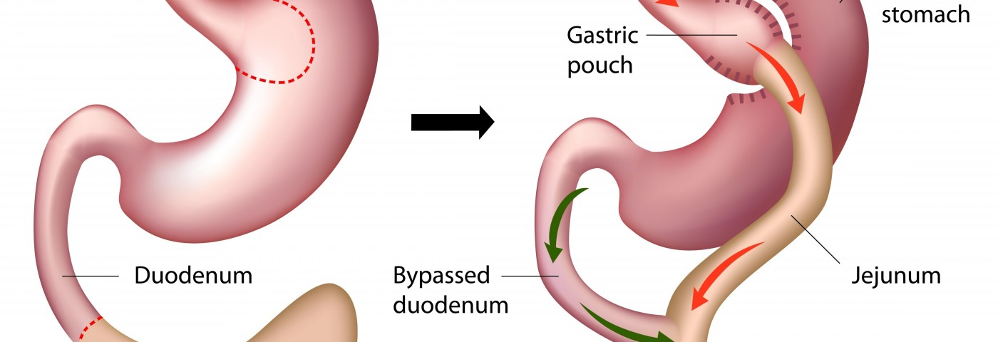 RYGB Surgery May Impact Bone Health in Type 2 Diabetes Patients