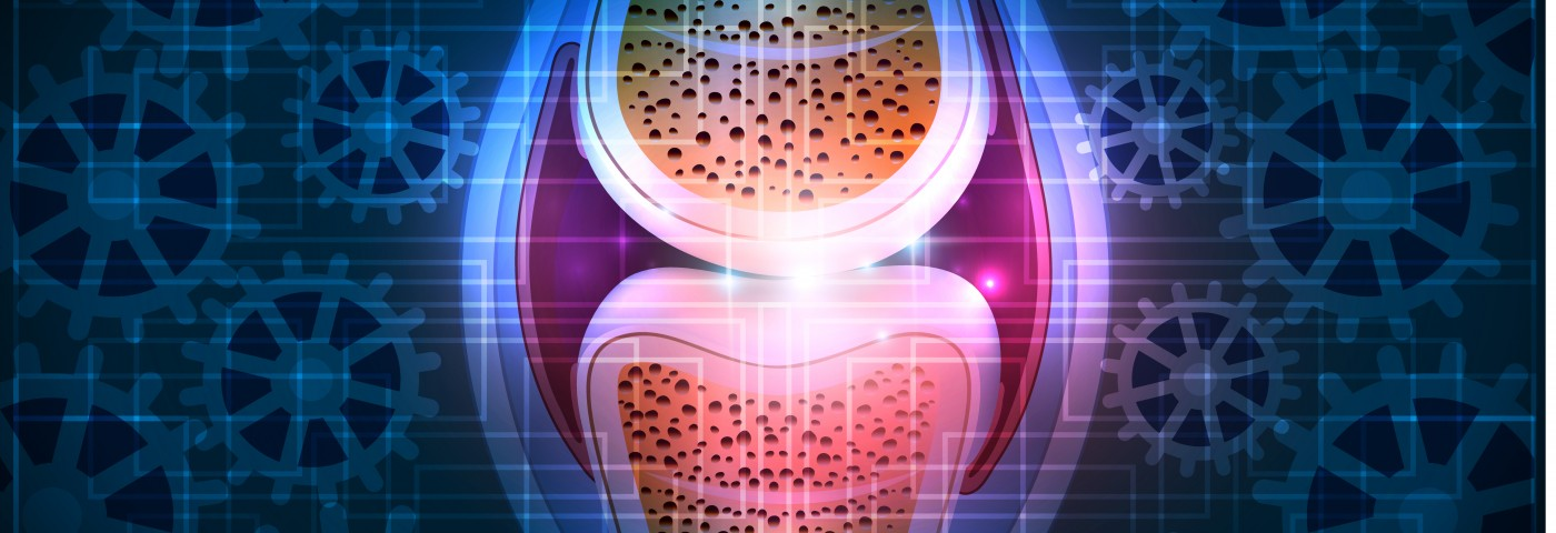 Bariatric Surgery a Helpful First Step for Obese Patients Needing Knee Replacement Surgery