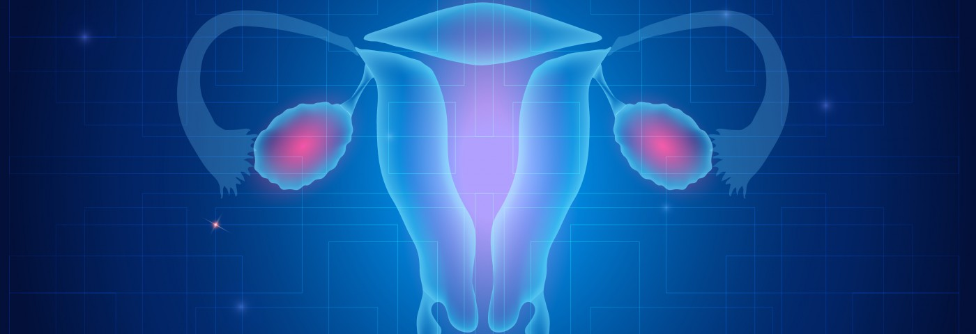54% Increase in Uterine Cancer Rates in UK Likely Linked to Rising Obesity, Group Says