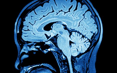 Severely Obese Women Show Different Brain Response to Food Cues