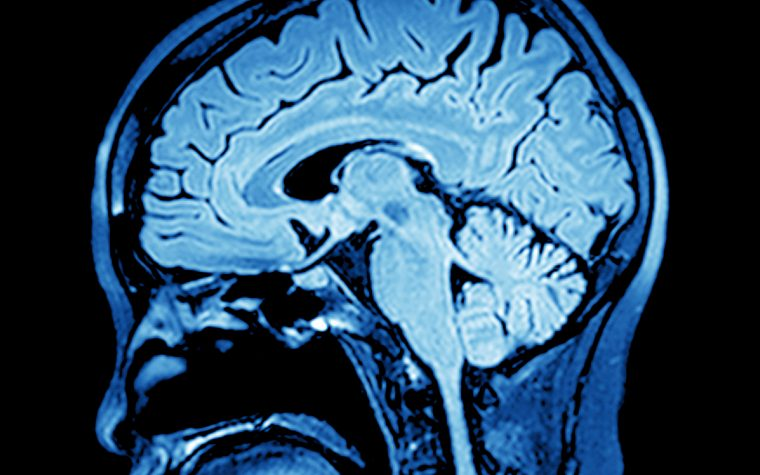 Severely obese women, lean women show different brain MRI results.
